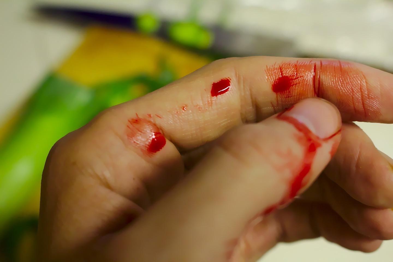 αιμορραγία πρώτες βοήθειες