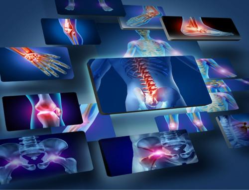 Μυοσκελετικός πόνος: Απαλλαχθείτε με προλοθεραπεία!