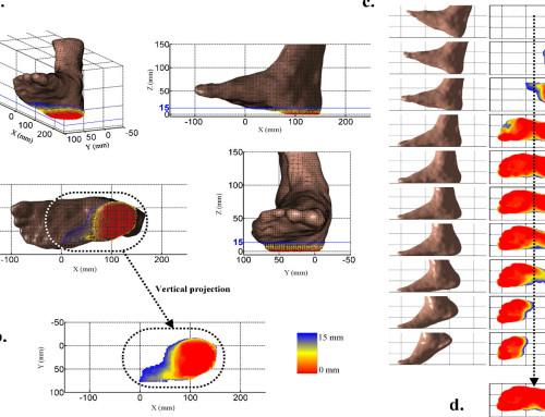 Πελματογράφημα: Πολύτιμο εργαλείο πρόληψης