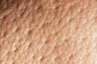δέρμα
