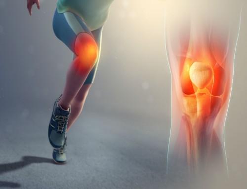 Οστεοαρθρίτιδα γόνατος: Νέα μέθοδος πρόβλεψης της εξέλιξης της