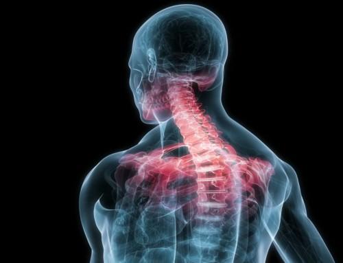 Αυχενική δυστονία: Η νόσος που κάνει το κεφάλι να γέρνει και να τρέμει
