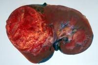 νεφρού