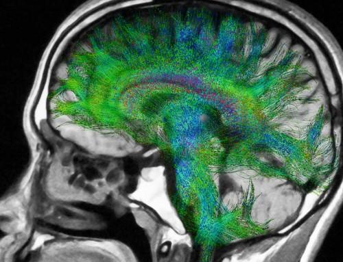 Νόσος Πάρκινσον: Ποιο είναι το κρίσιμο στάδιο στην πορεία της;