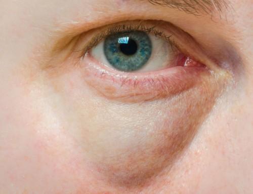 Πρήξιμο των ματιών: Μερικές φορές χρειάζεται αντιμετώπιση