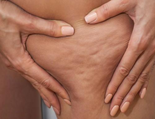Οι top θεραπείες για κυτταρίτιδα και τοπικό πάχος