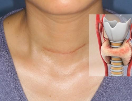Νόσος Hashimoto: Η ολική θυρεοειδεκτομή μειώνει τα συμπτώματα της;