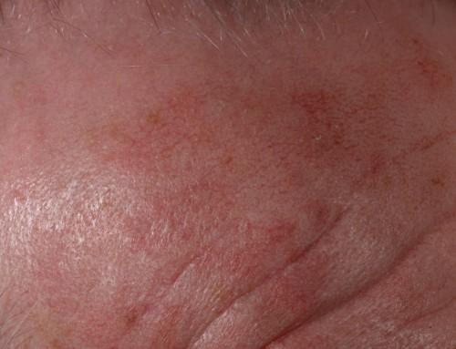Ακτινική υπερκεράτωση: Σοβαρές βλάβες στο δέρμα
