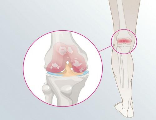 Οστεοαρθρίτιδα γόνατος: Σχετίζεται με την αϋπνία και την κατάθλιψη