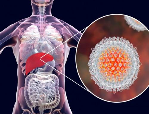 Βελτιστοποίηση εξάλειψης της Ηπατίτιδας C στην Ελλάδα