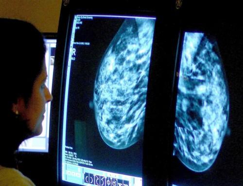Καρκίνος Μαστού: Ενοχοποιείται το άγχος για την καρκινογένεση