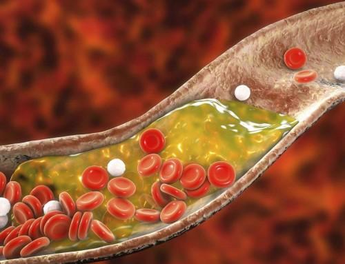 Χοληστερόλη: Σύμφωνα με έρευνες, μπορεί να επηρεάσει τη γονιμότητα