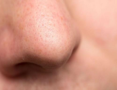 Ρινοπλαστική: Η σωστή επιλογή για το σχήμα και το μέγεθος της μύτης