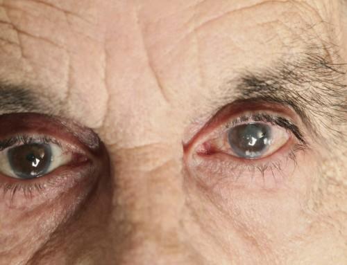 Καταρράκτης οφθαλμών: Οκτώ δεδομένα που δεν είναι ευρέως γνωστά