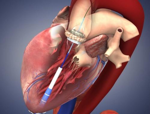 Επέμβαση αντικατάστασης καρδιακών βαλβίδων