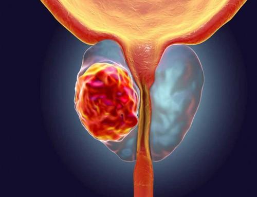 Καρκίνος προστάτη: Μια από τις πιο συχνές μορφές καρκίνου