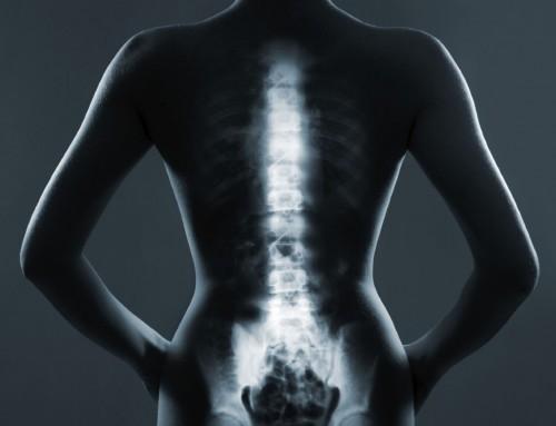 Καταπόνηση της γυναικείας σπονδυλικής στήλης: Πρόληψη του πόνου