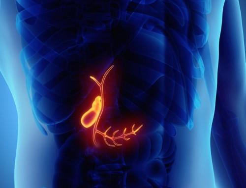 Οξεία Χολοκυστίτιδα: Γιατί πρέπει να χειρουργείται αμέσως;
