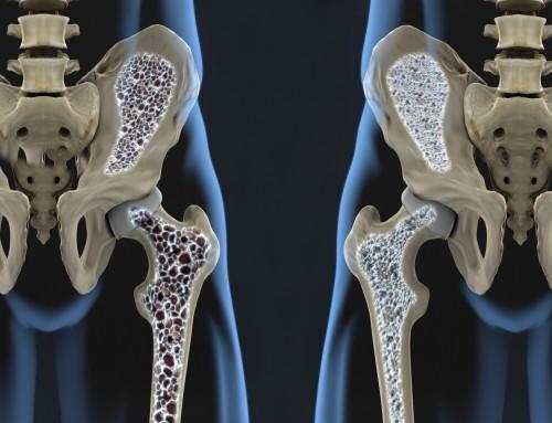 Κορωνοϊός: Τι να προσέξουν οι ασθενείς με οστεοπόρωση