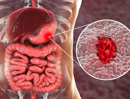 Έλκος στομάχου: Αιτιολογία, διάγνωση και θεραπεία