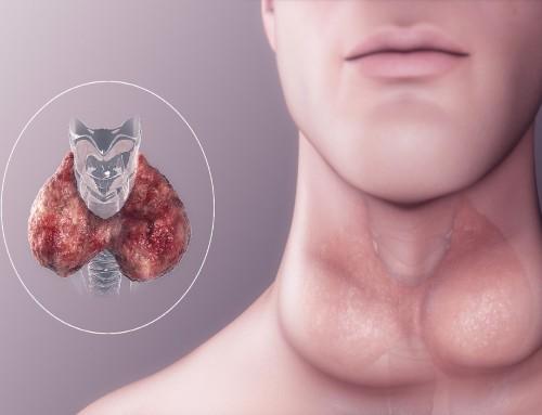 Υπερθυρεοειδισμός: Προστατεύει από τον καρκίνο;